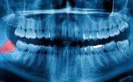 A fogászati röntgen fontossága